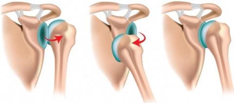 Серьезность привычного вида вывиха плечевой кости