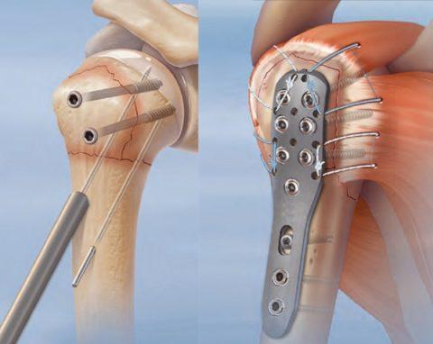 Соединение отломков плечевой кости пластиной и шурупами