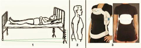 Способы фиксации – вытяжение (1), гипсовый корсет (2), гиперэкстензионный ортез (3)