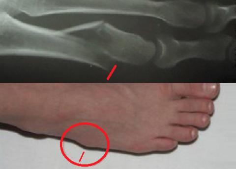 Сразу же после диафизарного перелома, до развития отёчности, может быть видна шишка