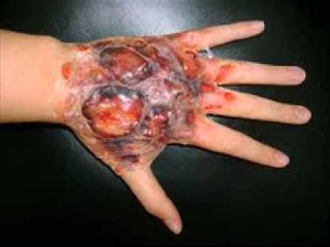 Стоит опасаться вторичного инфицирования раны