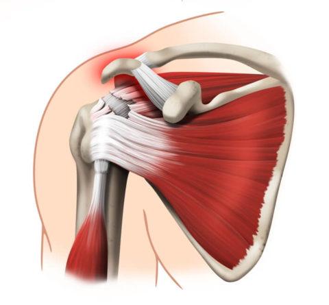Травма нижних отделов плечевой структуры