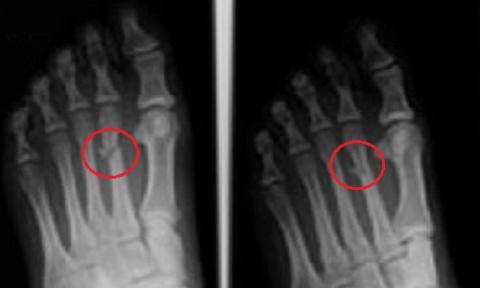 Трёх-оскольчатый (Y-образный) слом II кости плюсны