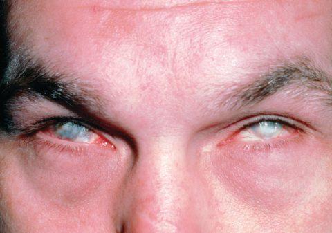Тяжелый химический ожог глаз