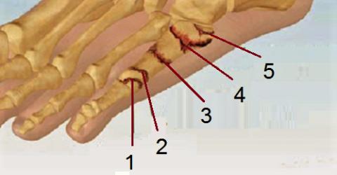 Виды сломов 5-й плюсневой кости в зависимости от локализации