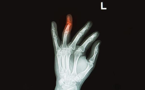 Перелом безымянного пальца: признаки и лечение