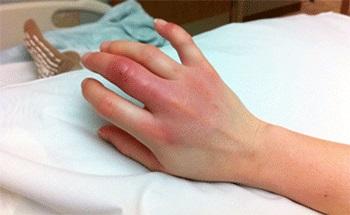 Воспаление раны