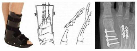 Возможные варианты фиксации переломов II плюсневой кости