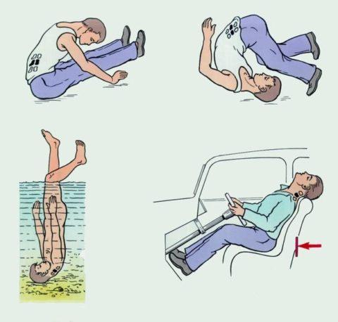 Возможный механизм получения травмы