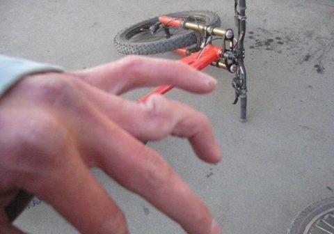 Выраженность симптоматики при закрытых травмах пальцев