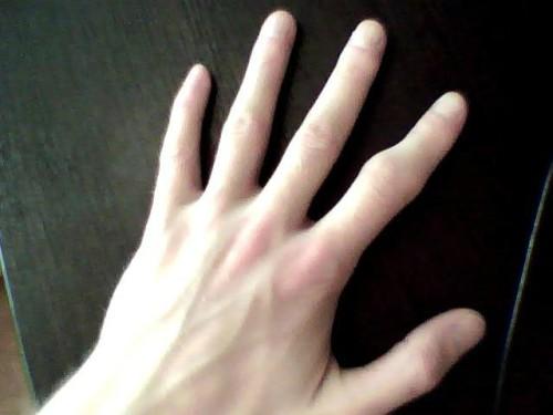 Причины деформации области сломанного пальца