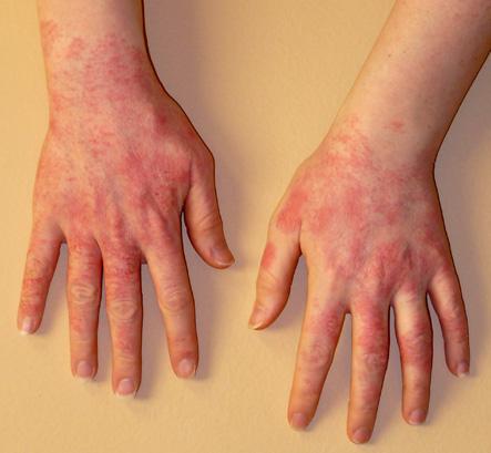 Аллергические реакции.