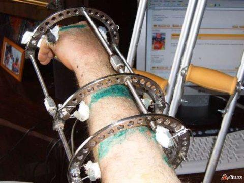 Аппаратная фиксация – самый эффективный и сложный метод лечения перелома.
