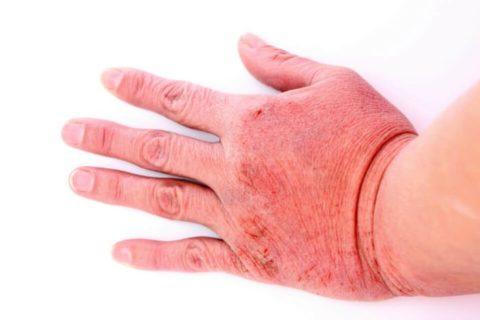 Дерматит – аллергическая реакция организма в ответ на применение состава.