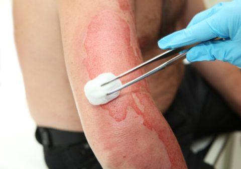 Дренирование пузыря после ожога и последующую обработку травмированной поверхности необходимо производить в медучреждении.