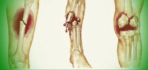 Формирование открытой раны из-за повреждения лучевой кости