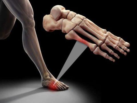 Фото: Анатомические особенности нарушенной целостности мизинца на ноге
