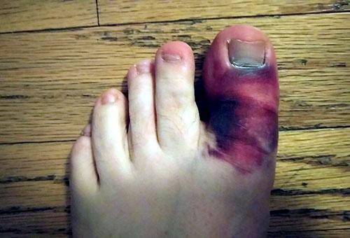 Сколько срастается перелом пальца на ноге: ускорение процесса
