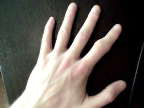Фото: время заживления сломанного пальца руки