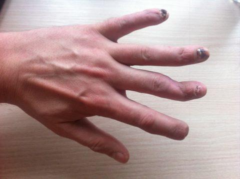 Фото:анатомическая основа повреждения целостности пальца наруке