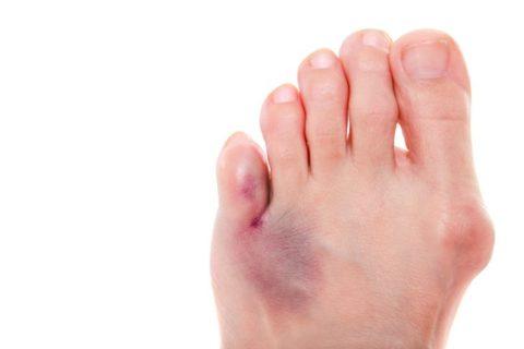 Фото:сломанный палец наноге