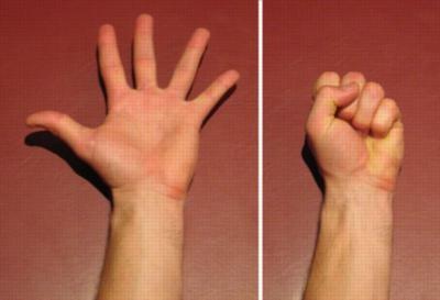 Гимнастика для больной руки снимает боль, активизирует кровоток и лимфоотток