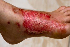 Глубокие поражения всех слоев кожи