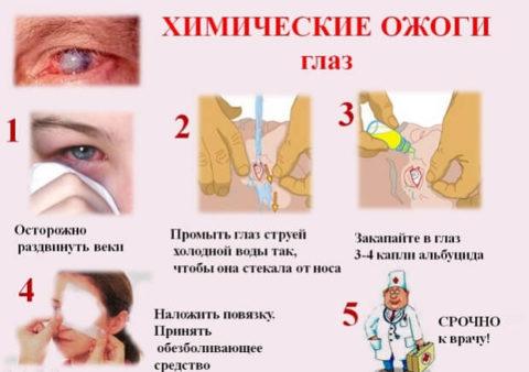 Химические ожоговые травмы происходят от воздействия активных химвеществ.