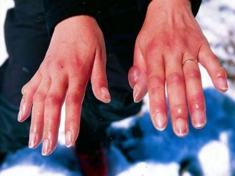 Холодовая травма также относится к термическим повреждениям.