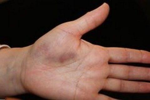 Изменение цвета кожных покровов кисти руки