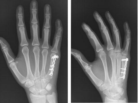 Как выглядит фиксация костных отломков после хирургического вмешательства