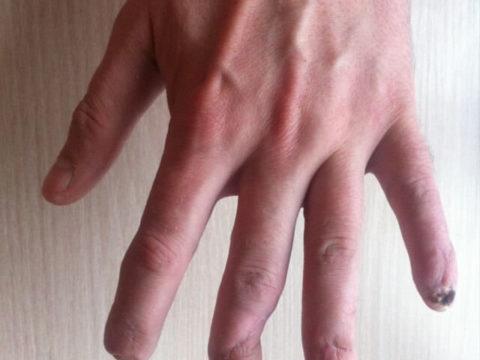 Классификация видов переломов пальцев