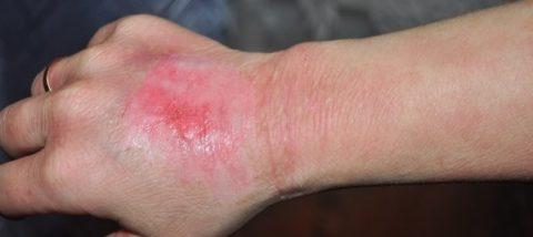 Лечение повреждения 1 степени препаратом
