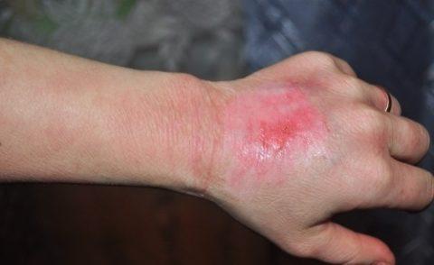 Лечение термического поражения кожи в домашних условиях