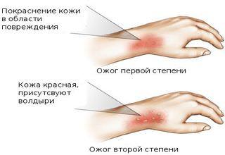 Лечиться при помощи народных средств можно только при термических повреждениях 1 - 2 степени.