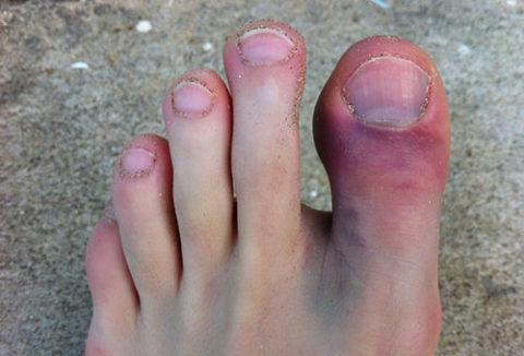 Механизмы возникновения травмы пальцев на ногах