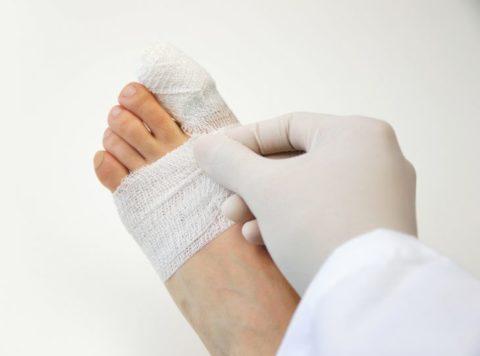 Накладывание гипсовой повязки для фиксации травмированной стопы