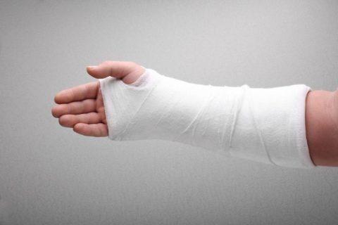 Наложение гипсовой или пропиленовой повязки – обязательное условие лечения перелома.