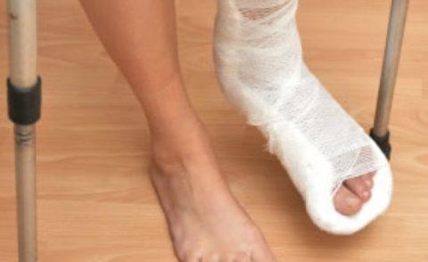 Наложение гипсовой иммобилизирующей лонгеты для фиксации сломанной кости пальцев ноги