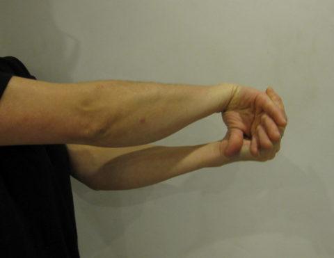 Одно из осложнений перелома – утрата поврежденной конечностью былой подвижности.