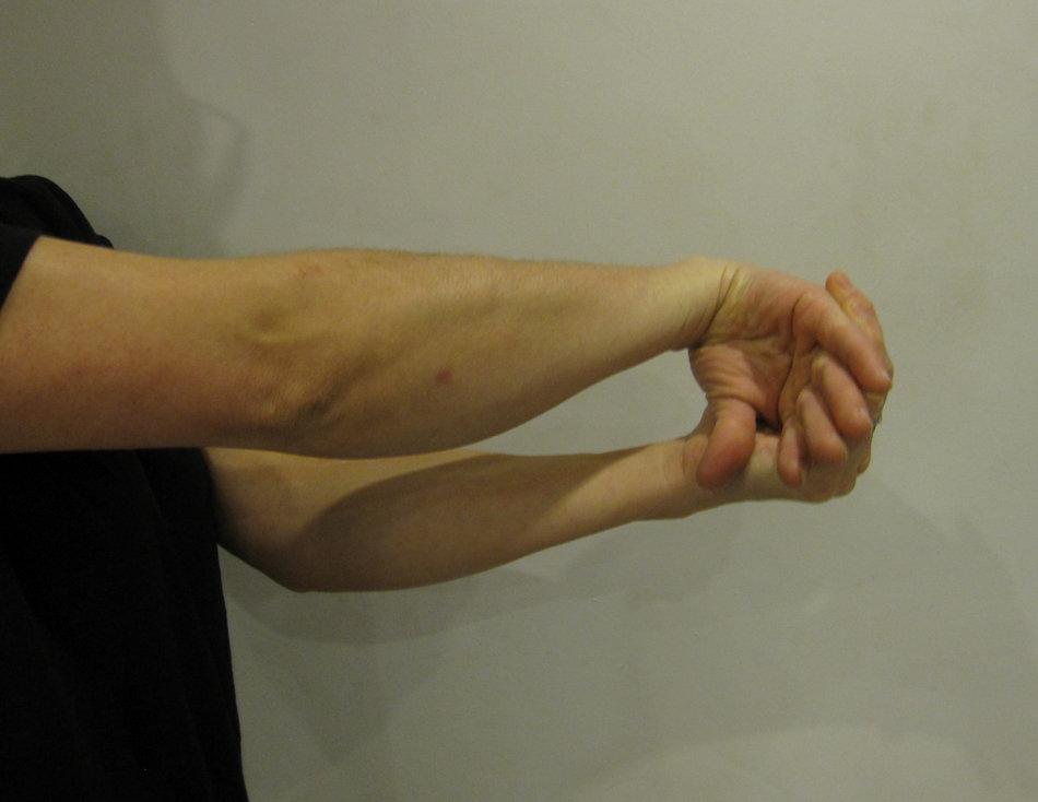 Рука фото растянутая
