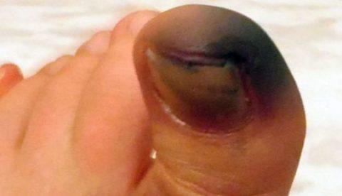 Осложнение перелома пальца в форме развивающейся гангрены