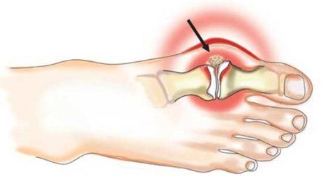 Основные рекомендации для профилактического предупреждения сломанной кости пальца ноги