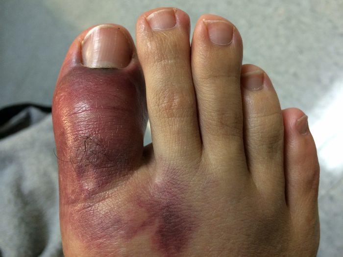 Ушиб пальца на ноге после удара