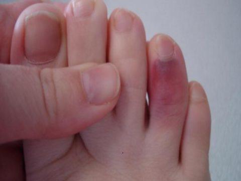 Особенности диагностики и первой медицинской помощи при травмах пальцев