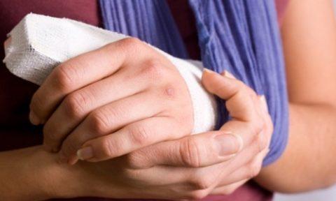 Особенности проведения закрытой репозиции сломанного пальца руки