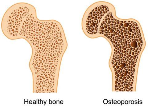 Остеопороз (хрупкость кости)
