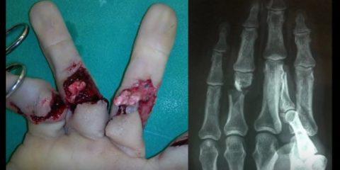 Открытый вид перелома пальцев руки и рентгенографический снимок