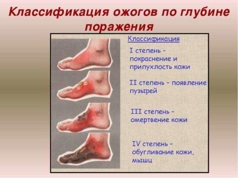 Ожоговые поражения делятся на 4 стадии.