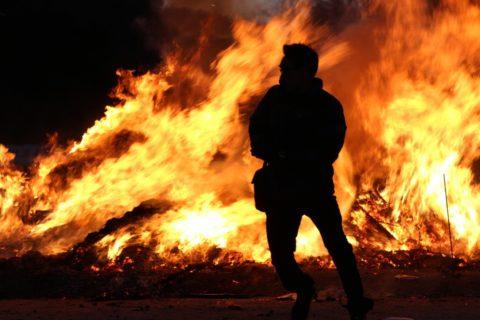 Ожоговый шок развивается вследствие повреждения более чем 10% кожных покровов.